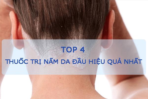 Top 4 thuốc trị nấm da đầu hiệu quả nhất