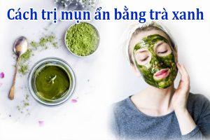 Cách trị mụn ẩn bằng trà xanh