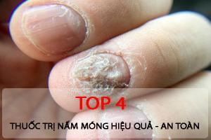 Top 4 thuoc tri nam da hieu qua nhat duoc cac chuyen gia khuyen dung